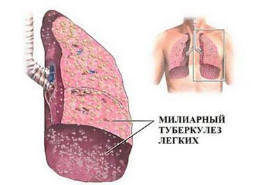 Милиарныйтуберкулёз