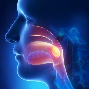 Хроническое разрастание миндалин