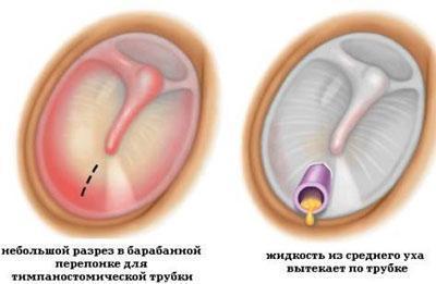 Операция миринготомия