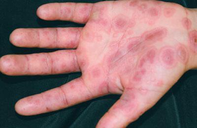Экссудативная эритрема