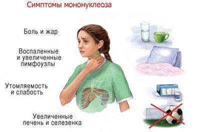 Признаки мононуклеоза