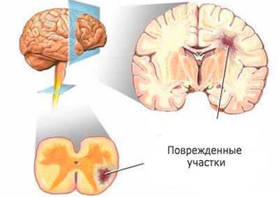 Мозг при рассеянном склерозе