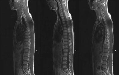 МРТ позвоночного столба