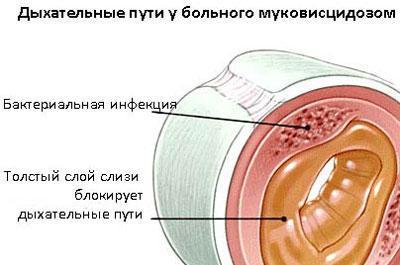 Проявление муковисцидоза