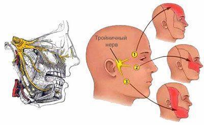 Воспаление троичного нерва