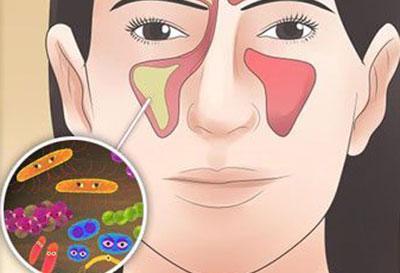 Инфекция как причина гайморита