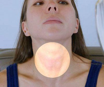 Признаки заболеваний щитовидной железы