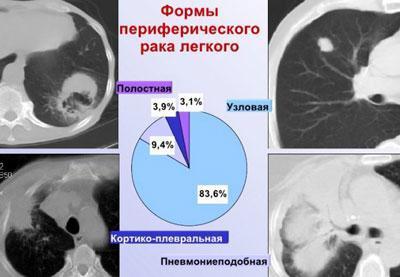 Виды периферического рака легких