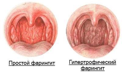 Гипертрофический фарингит