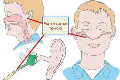 Связь полостей уха и носа
