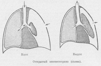 Открытый пневмоторакс легкого