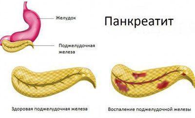Проявление панкреатита