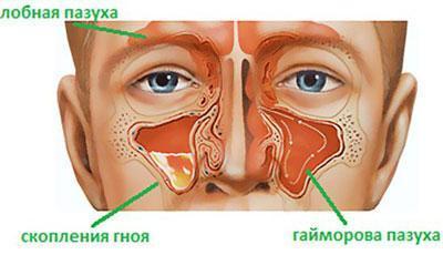Симптом гайморита