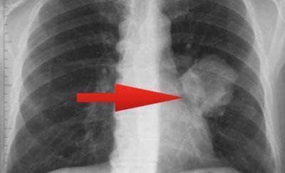 Туберкулез грудных лимфаузлов