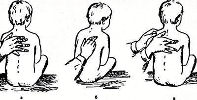 Перкуссия легких ребенка