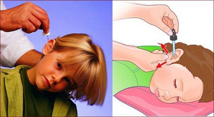 Как закапать ухо ребенку