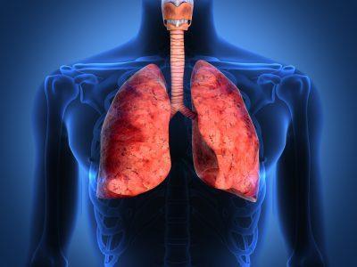 Рестриктивная дыхательная недостаточность