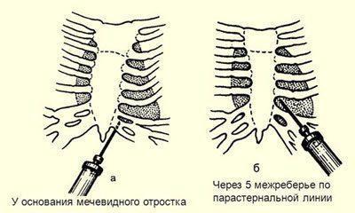 Прокол при плевральной пункции