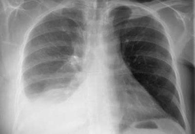 Плеврит на рентгенограмме