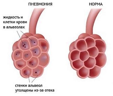 Здоровые альвеолы