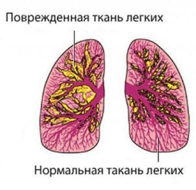 Пневмоторакс у младенца
