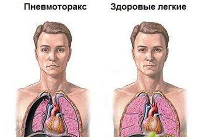 Следствие пневмоторакса