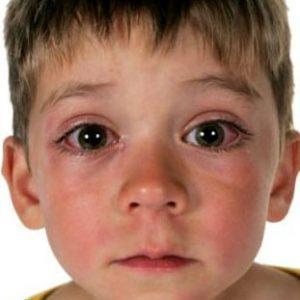 Появление отёчности у ребенка в носу