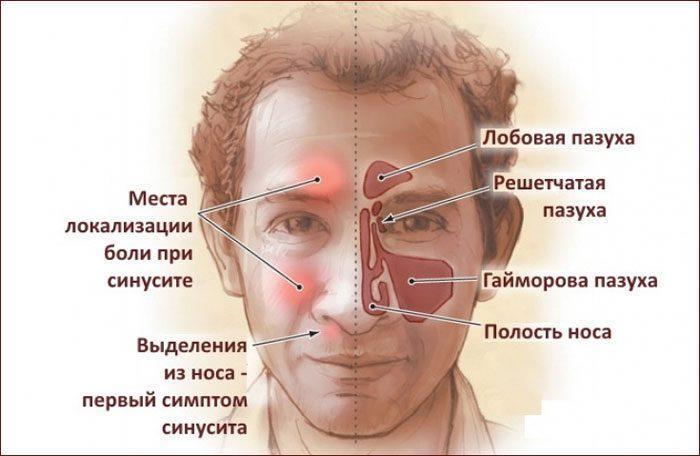 Проявление синусита