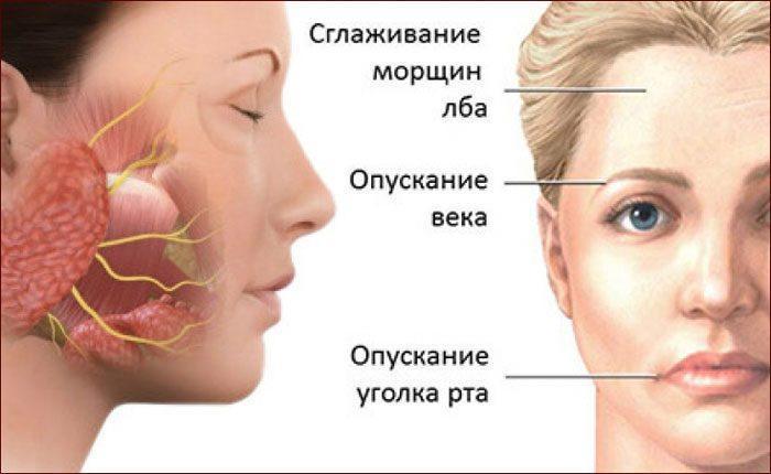 Симптомы воспаления лицевого нерва