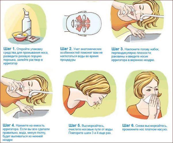 Последовательность промывания носа