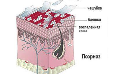 Проявление псориаза