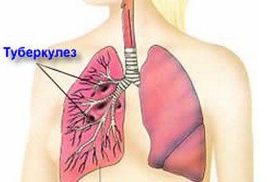 Локализация туберкулеза