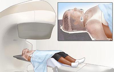 Лучевая терапия при раке горла
