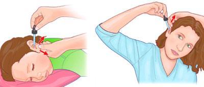 Методы закапывания уха