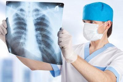 Врач осматривает рентген легких