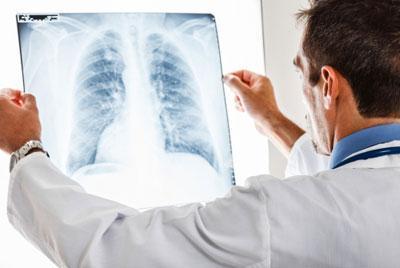 Гидроторакс лёгких: что это такое, виды, причины возникновения, лечение