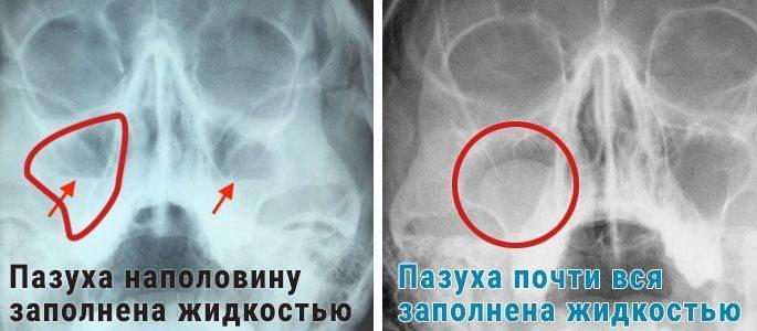 Рентгенограмма гайморита