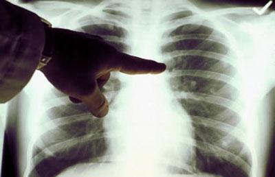 Кальцинаты в левом корне. Причины возникновения и способы лечения кальцинат в легких. Что такое кальцинат в легких