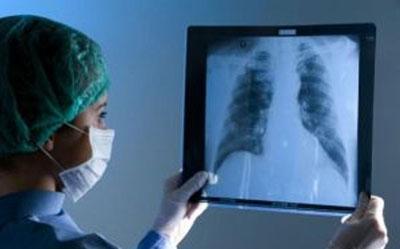 Рентген легких