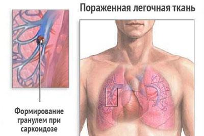 Проявление саркоидоза легких
