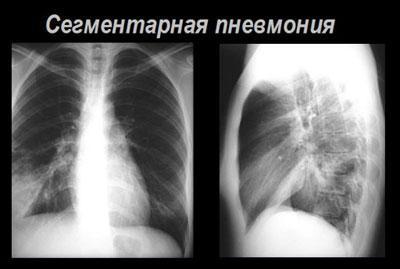Сегментарная пневмония на рентгене