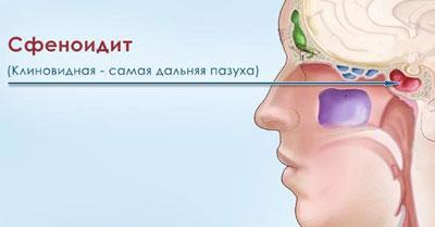 Проявление сфеноидита