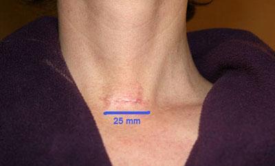 Шрам после операции на щитовидке