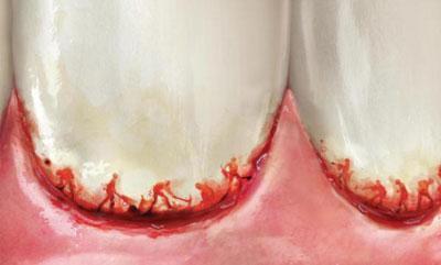 Кровоточивость дёсен