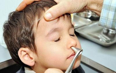 Обследование носа ребенка