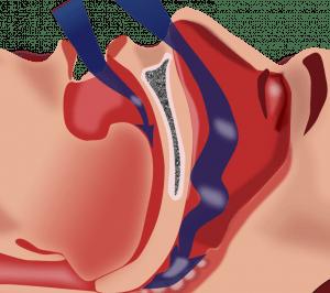 Синдром апноэ