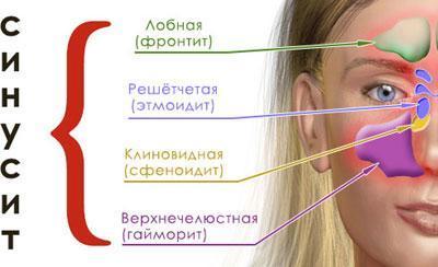 Типы синуситов