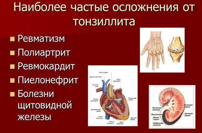 Осложнения от тонзиллита
