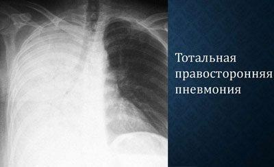 Тотальная пневмония на рентгене