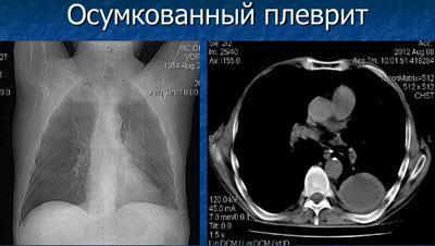 Осумкованный плеврит на рентгене